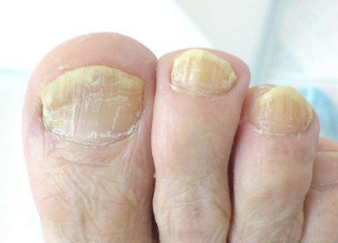 Запущенные ногти на ногах 84