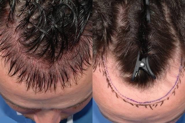 Сколько волос можно пересадить