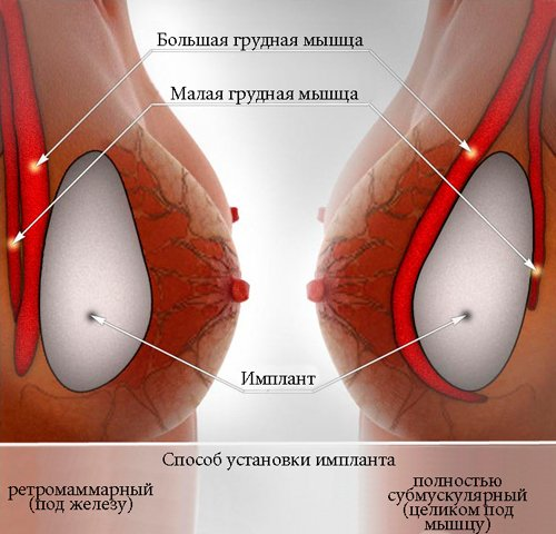 Можно ли увеличить грудь с нулевого размера