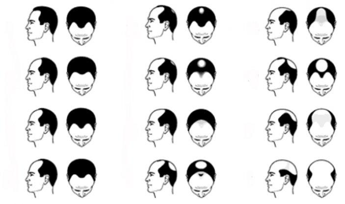 Перед нанесением миноксидил для волос как применять случае возникновения
