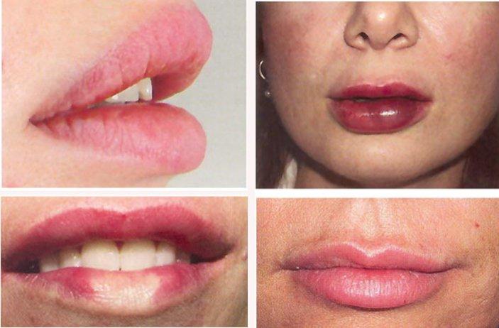 Накачанные помпой губы фото 760-67