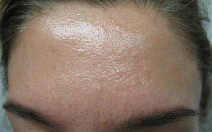 Замечательная маска для лица от проблемной кожи