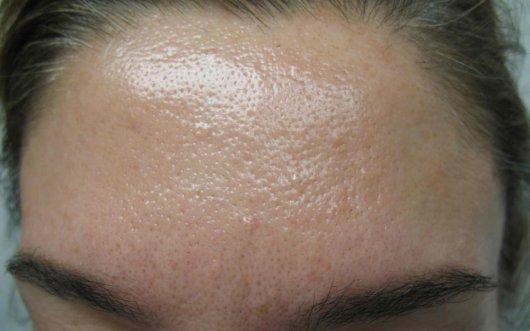 Сальные железы на лице: проблема гиперплазии